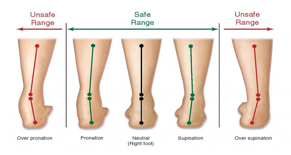 pronation distortion, runners injury, sports chiropractor, frisco texas
